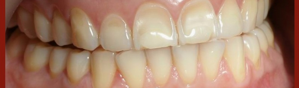 Dental bonding in Los Angeles