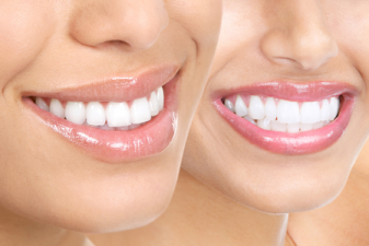 Get a Smile Makeover with Cosmetic Porcelain Veneers by some of the best in Los Angeles.