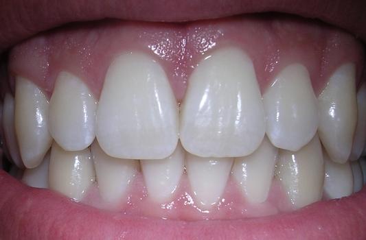 Teeth Cleaning Procedures