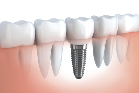 Dental implant, implant crown, periodontist, LA periodontist, LA implant center.