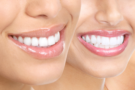 Dental veneers Los Angeles
