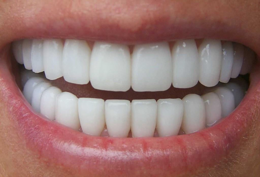 teeth-cleaning-los-angeles